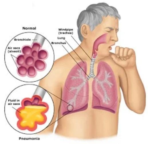 مراقبت دهانی دندانی برای سالمندان