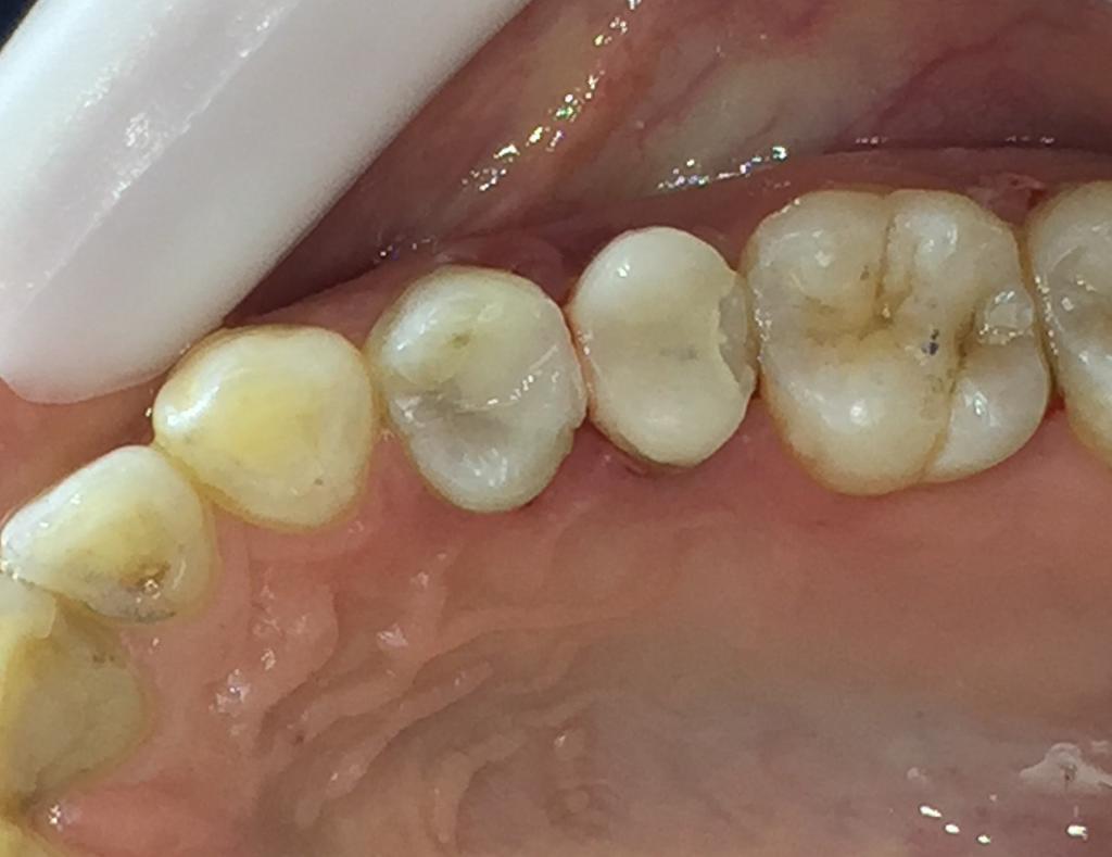 ترمیم کامپوزیت دو دندان
