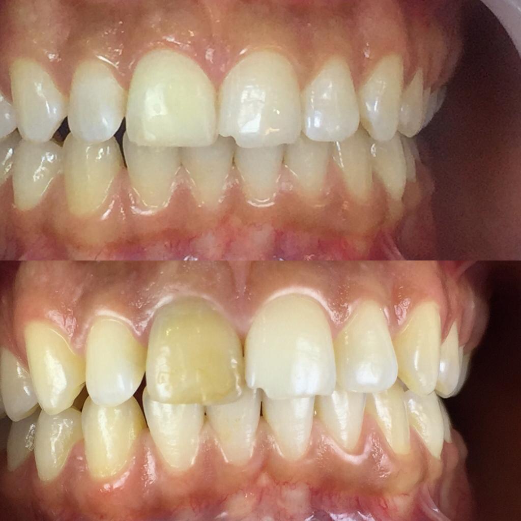 إصلاح رنگ تک دندان قدامی