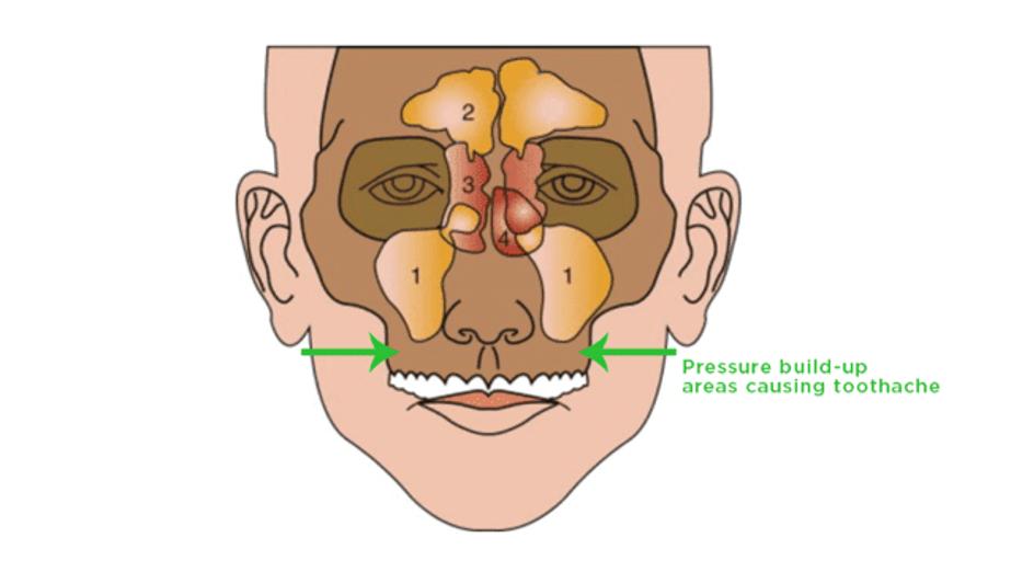 درمان دندان درد سینوسی