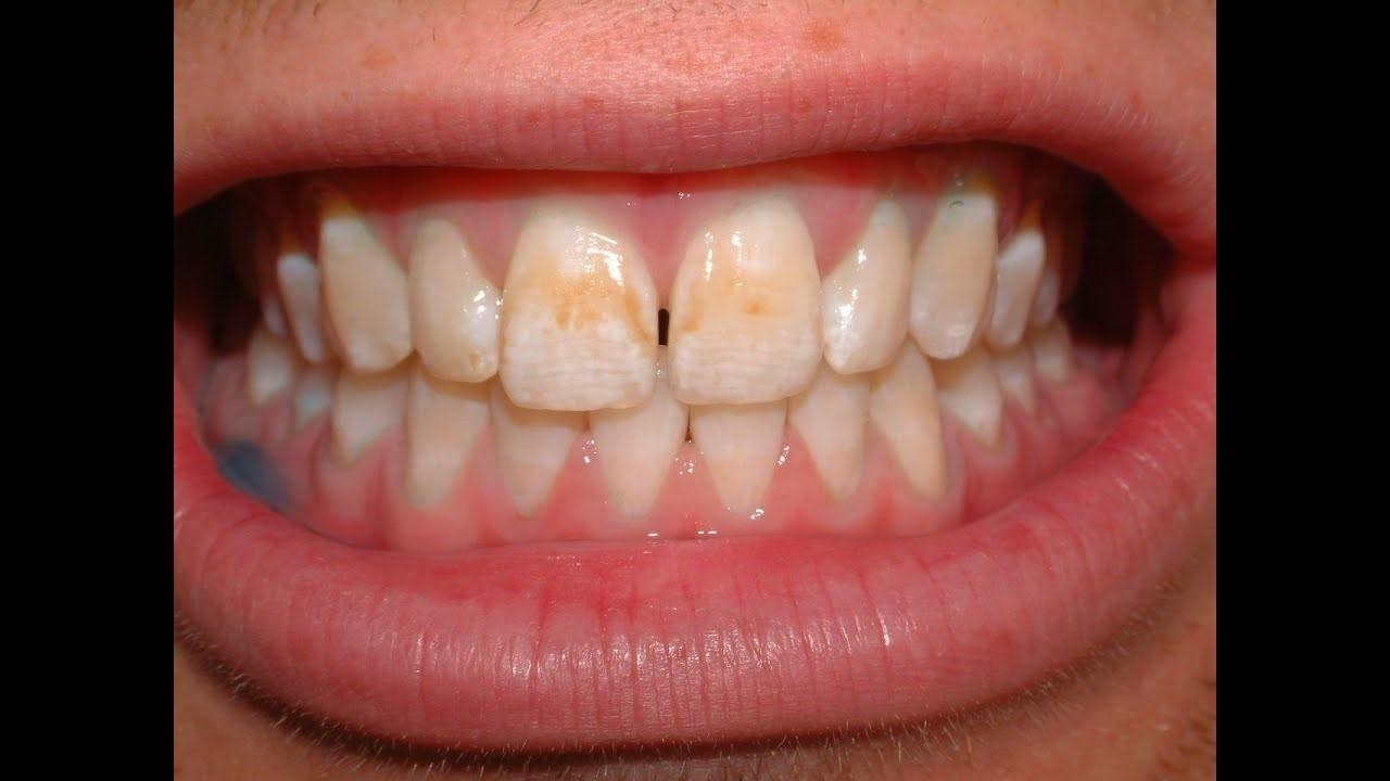 درمان لکه های دندان