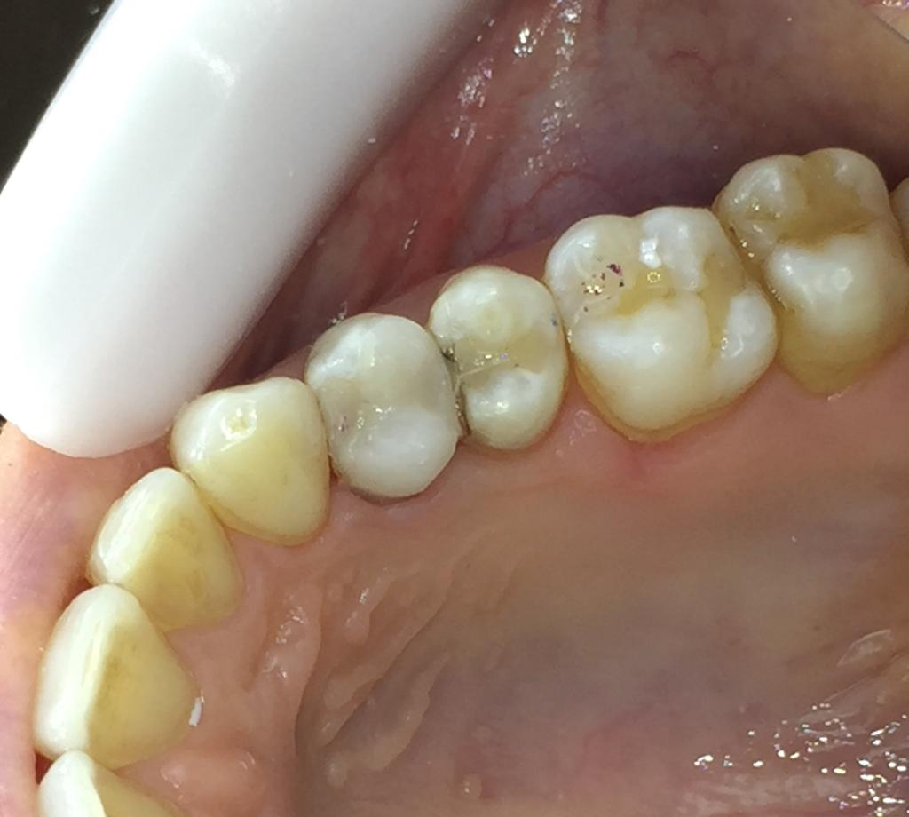 بازسازی دندان شکسته شده به روش انله کامپوزیتی بعد از DME