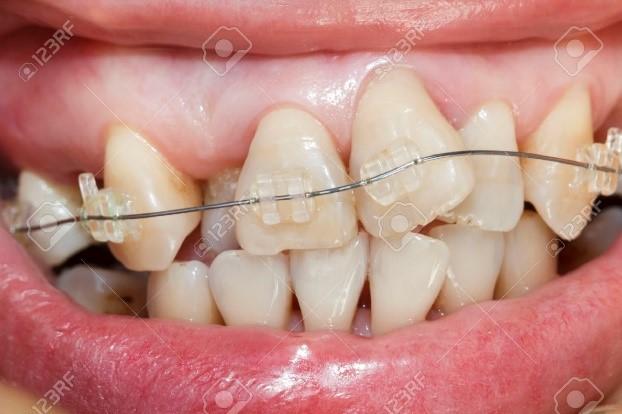 کجی دندان