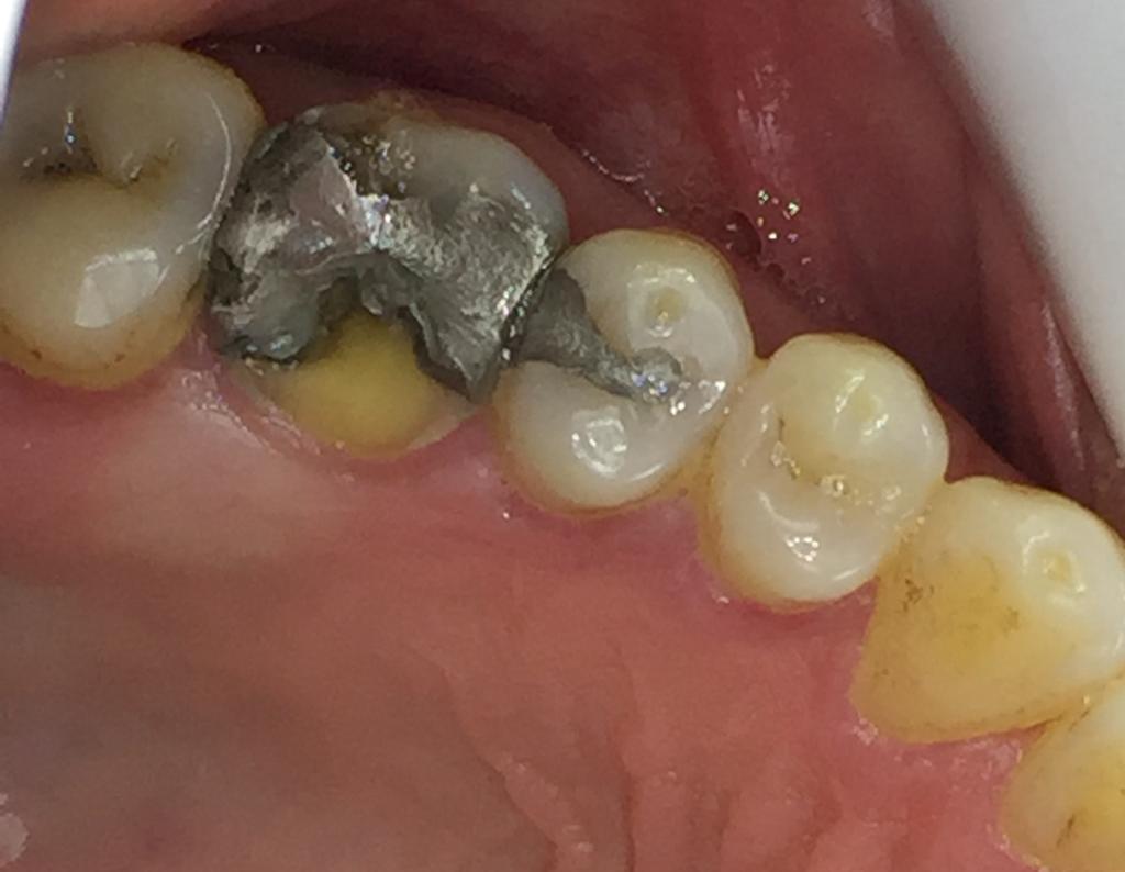 ترمیم دندان با انله