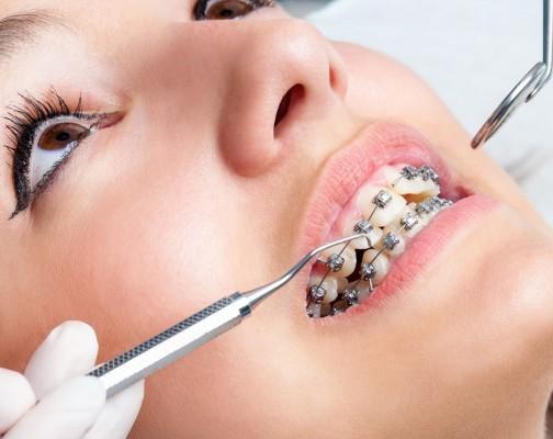 نقش دندانپزشک در موفقیت درمان ارتودنسی