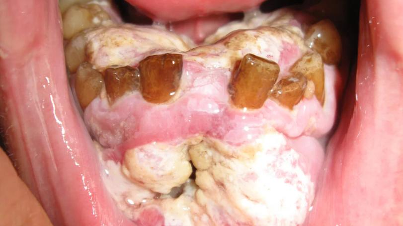 زخم های دهانی